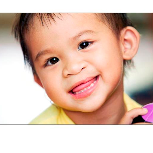 OPERATION SMILE VIETNAM
